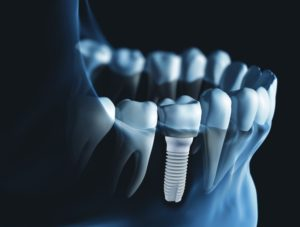 Zusa Mono Half Implant by Zsystems